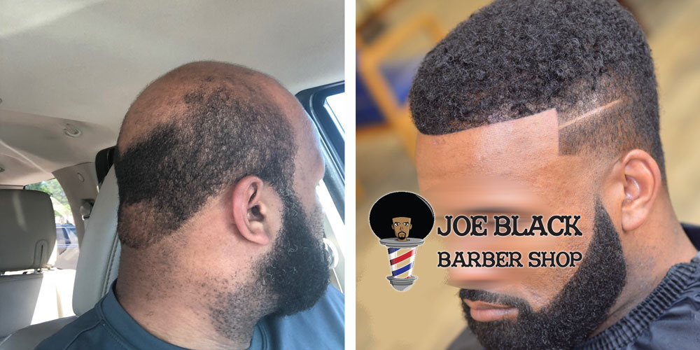 Men's Hair Replacement Services in Houston, TX | Joe Black